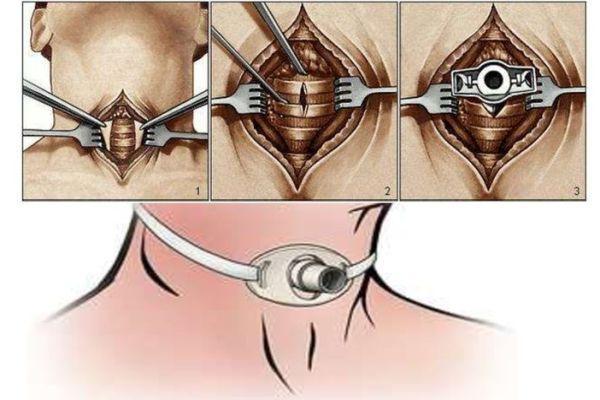 трахеостомия
