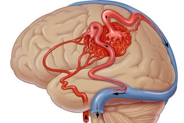 артериовенозные мальформации
