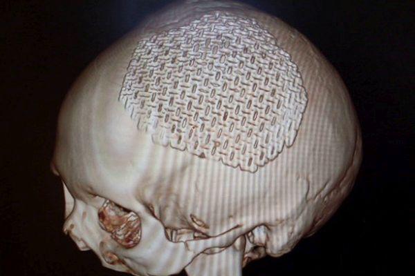 пластика черепа