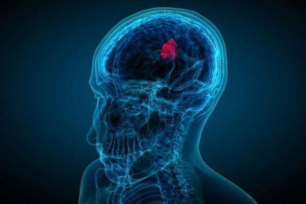 Киста ретроцеребеллярная в голове у взрослого