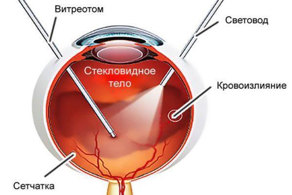 витроэктомия