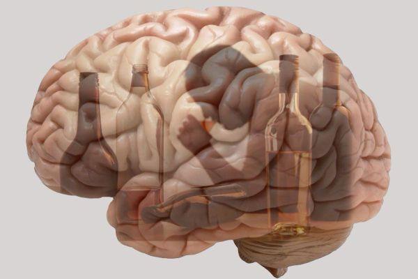 алкогольная патология мозга
