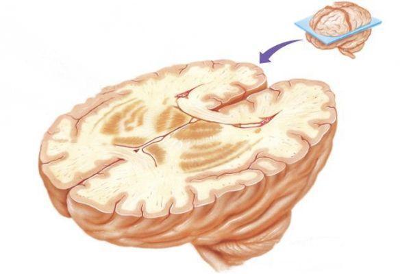 базальные ядра мозга