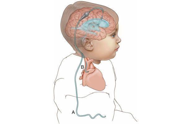 шунтирование мозга ребенка