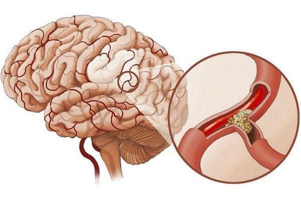 забитые сосуды мозга