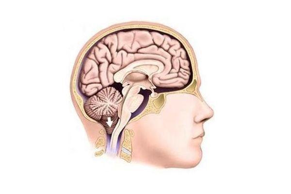 опускание мозжечка