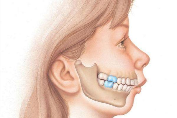 недоразвитие челюсти