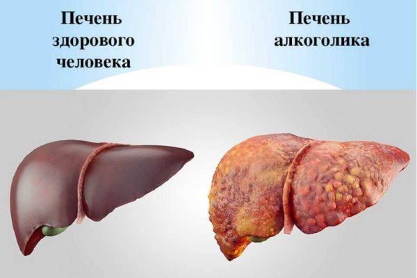 этанол и печень