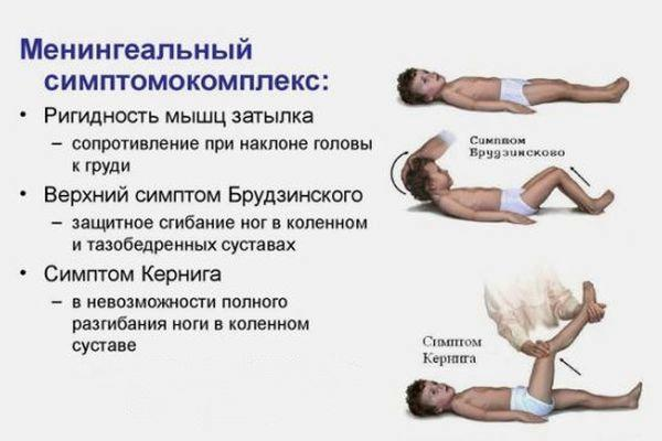 нингиальный симптомокомплекс