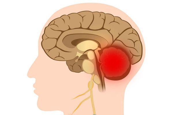 патология мозжечка