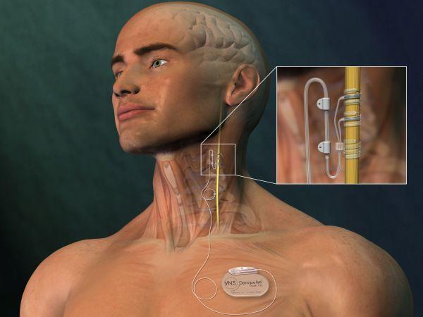 электростимуляция участка блуждающего нерва