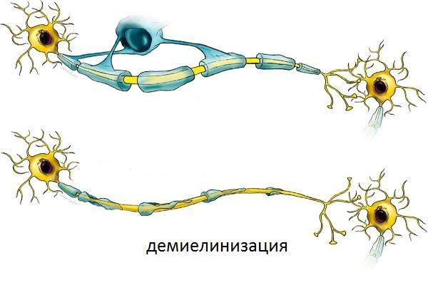 демиелинизация нервных волокон