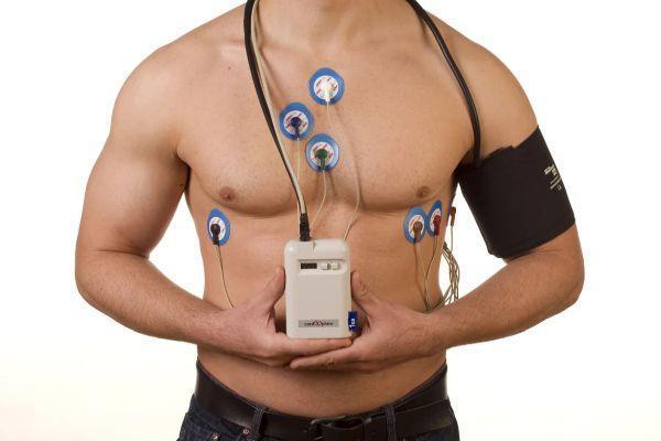 суточный мониторинг сердца