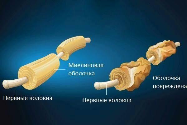 демиелинизирующие процессы