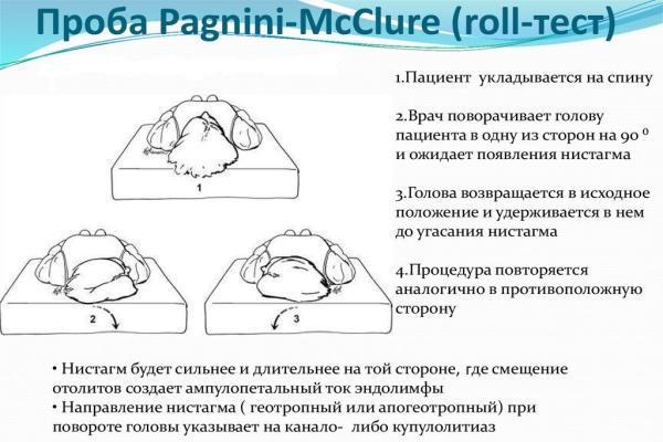 тест МакКлюра-Пагнини