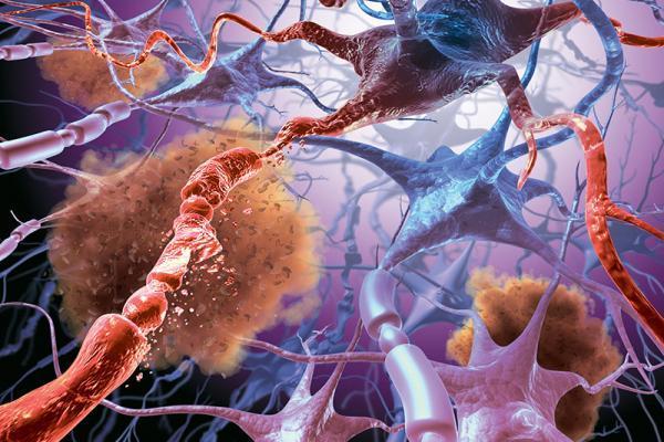 разрушение нейронов
