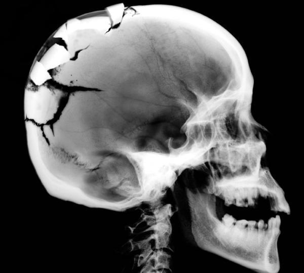 мрт черепа
